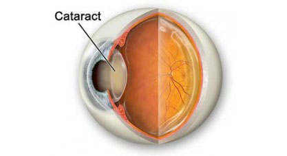 Cataract2