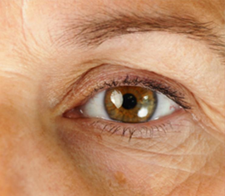 conditions-glaucoma