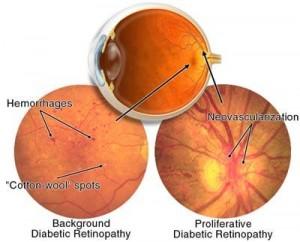 img-diabetic-retinopathy1362524137163-300x242