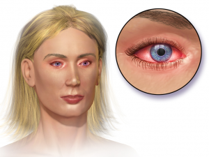 AllergicConjunctivitis-300x225