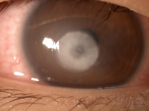 cornea-ulcer-300x225