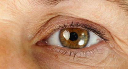 glaucoma3